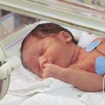 How To Monitor Development Of A Premature Baby?